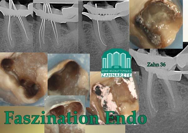 Zahn 36 mit vollständig obliterierten Pulpencavum, 5 Wurzelkanäle