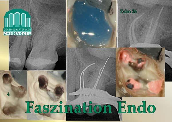 Zahn 26 mit 4 Wurzelkanälen und starken Krümmungen