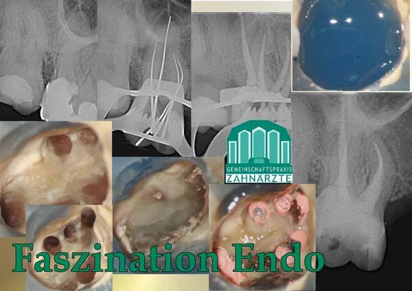 Zahn16 mit 5 Wurzelkanälen