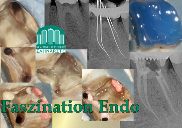 Zahn 36 mit langen extrem gekrümmten Wurzelkanälen
